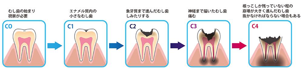 「子どもの歯・口の健康」⑦ 【むし歯編】~むし歯の進行~