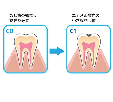 「子どもの歯・口の健康」⑧ 【むし歯編】~むし歯チェックしてみよう~